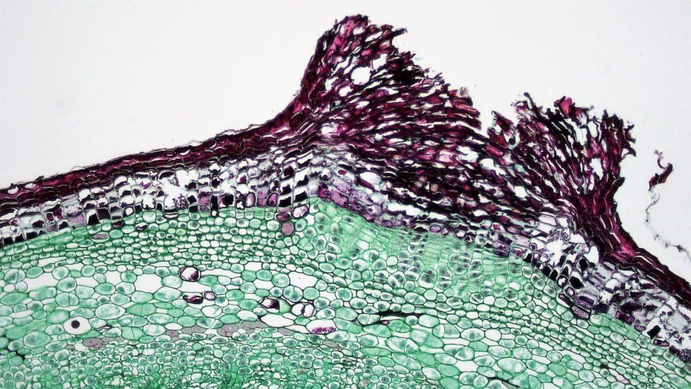Lenticel micro